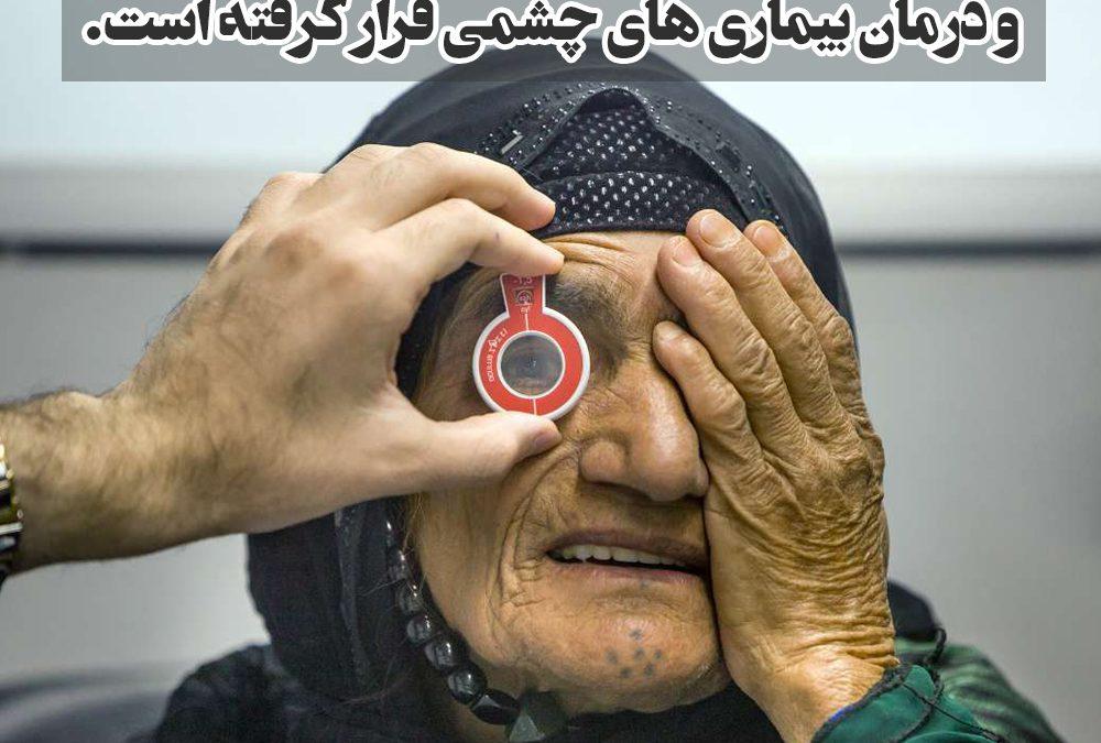 پیوند کلیه،بیماری چشمی